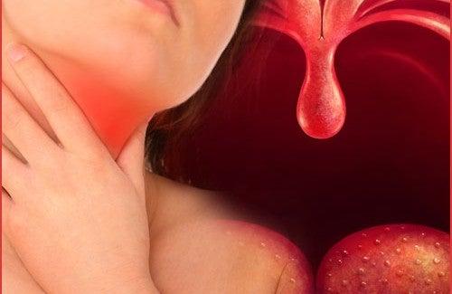 Remèdes naturels contre la pharyngite