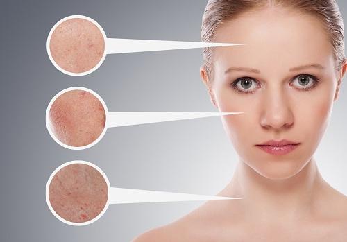 Différents problèmes de peau pour le front, les joues et le cou