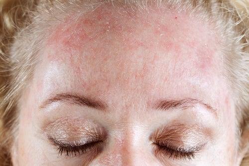 allergies cutanées
