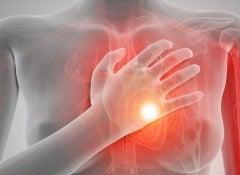 Arrêt cardiaque