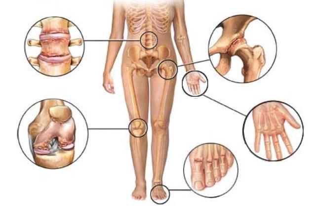 L'arthrite : 6 mesures à prendre pour soulager son impact  Arthrite