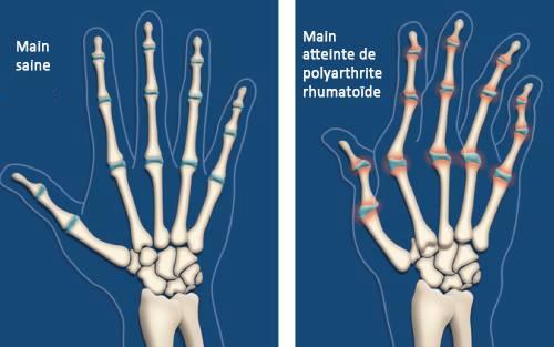 L'arthrite : 6 mesures à prendre pour soulager son impact  Polyarthrite-rhumato%C3%AFde