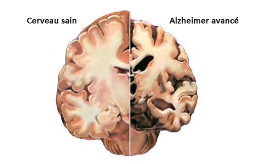 Alzheimer : comment détecter les premiers symptômes ?