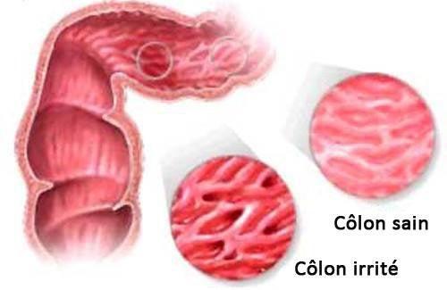 Syndrome de l'intestin irritable : les aliments interdits