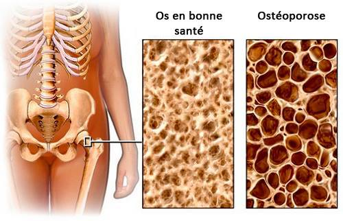 Une diète à observer pour éviter l'ostéoporose