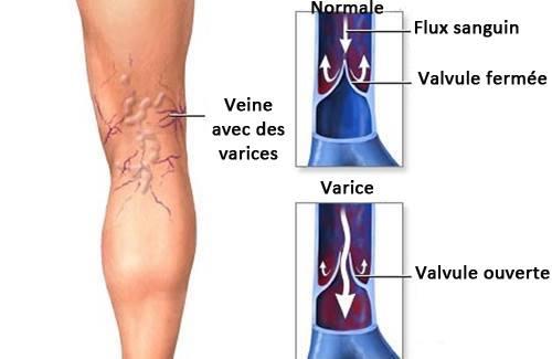 La varice variqueuse le traitement national de larticle