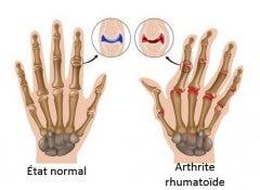arthrite1
