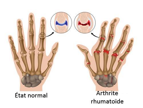 L'arthrite rhumatoïde : comment en contrôler les symptômes ?