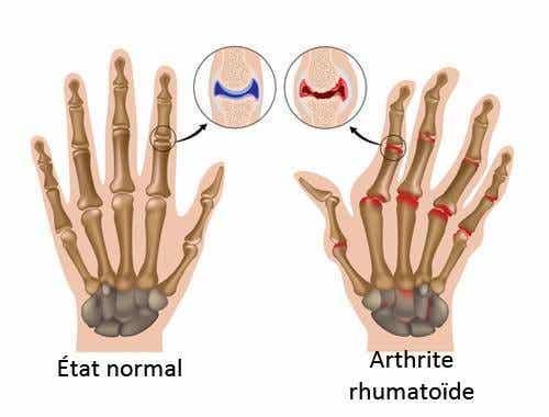 5 choses que vous ne savez pas sur l'arthrite