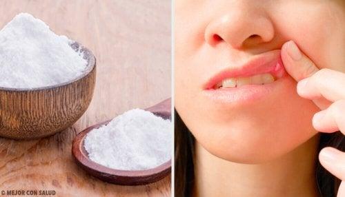 Le bicarbonate aide à soigner les aphtes