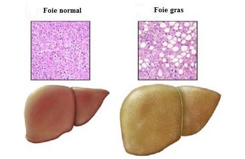 Maladie du foie gras : les aliments qu'il faut éviter