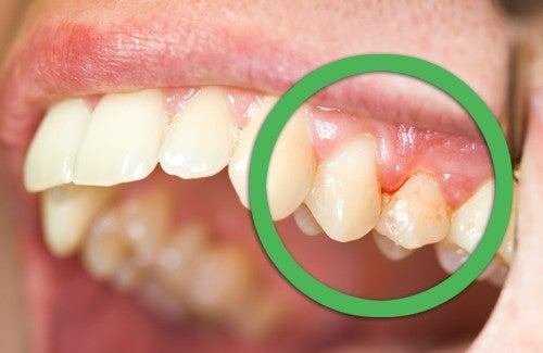 Comment traiter les principales affections de la bouche