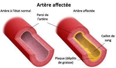 artériosclérose et maladies cardiaques chez la femme