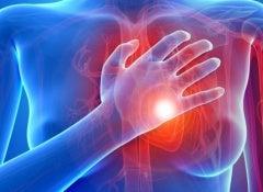 cardiaque