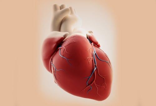 La crise cardiaque chez les femmes.