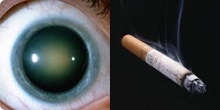 Le tabagisme participe au développement de la cataracte.