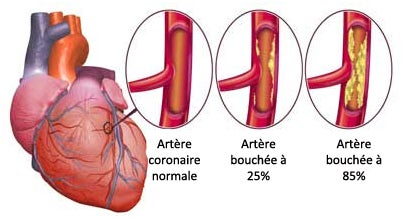 L'insuffisance cardiaque chez les femmes.