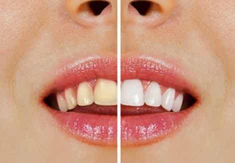 Blanchir les dents avec des produits naturels