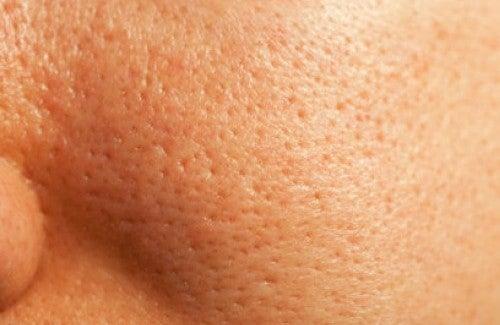 le traitement naturel des pores dilat s am liore ta sant. Black Bedroom Furniture Sets. Home Design Ideas