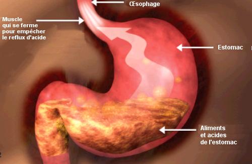 Un régime alimentaire équilibré pour les personnes souffrant de reflux
