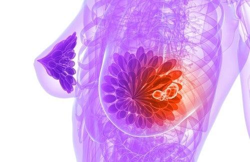 Comment détecter à temps un cancer du sein ?