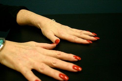 Les symptômes de l'arthrite sont nombreux.