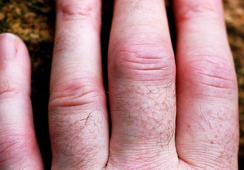 Quelques conseils pour soigner l'arthrite rhumatoïde.