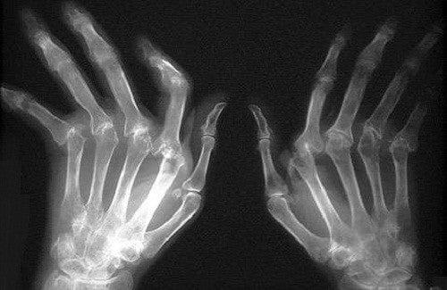 10 remèdes naturels pour soigner l'arthrite