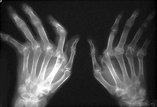 Une des causes principales de l'arthrite est une faible consommation d'eau.