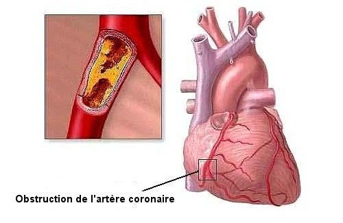 8 mauvaises habitudes qui peuvent générer des problèmes cardiaques