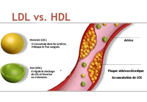 L'eau d'aubergine contre le cholestérol.