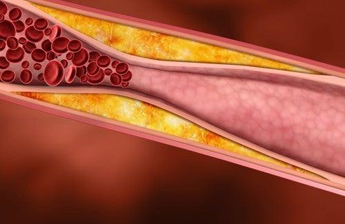 Plantes médicinales qui réduisent le cholestérol