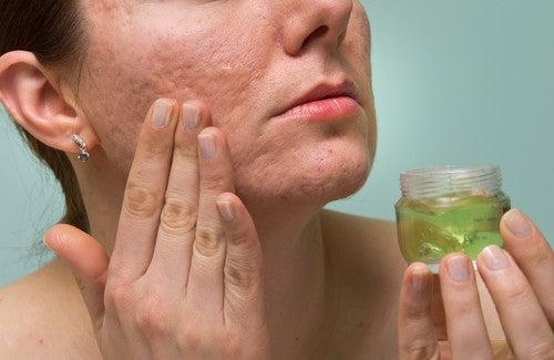 Comment éliminer les marques de l'acné avec des remèdes naturels