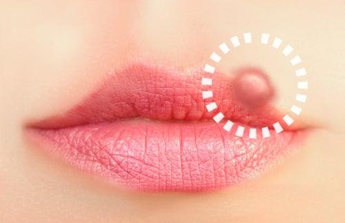 L'herpès labial : 10 traitements pour s'en débarrasser