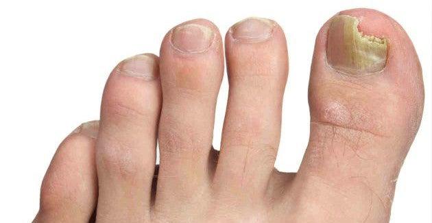 comment traiter une mycose des ongles