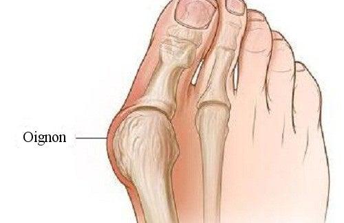Comment se forment les oignons de pied