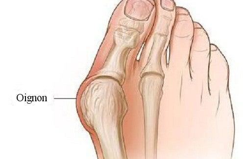 Comment se forment les oignons de pieds