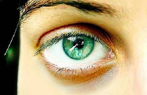 8 signes du visage qui en disent long sur votre santé