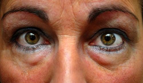 comment avoir les yeux moins fatigues