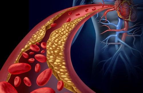 Comment réduire naturellement les triglycérides
