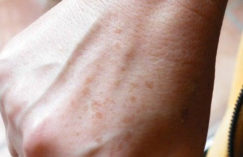 Léloignement des taches de pigment sur la personne chez le cosmétologue