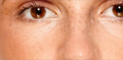 Comment atténuer ou éliminer les taches sur le visage