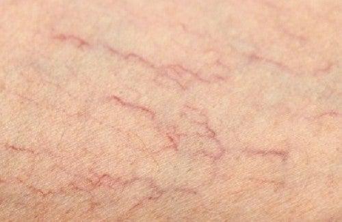 Le traitement de la varicosité si a bouffé la veine