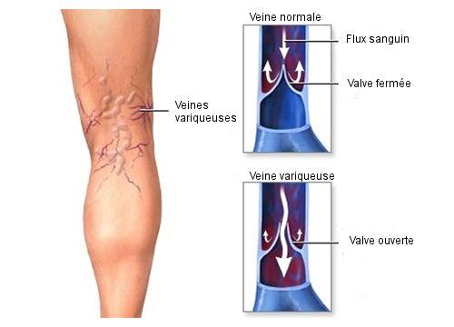 Veines-varices
