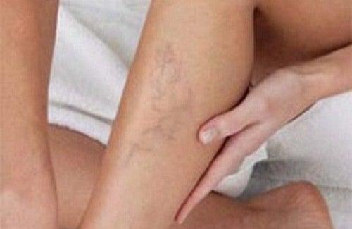 """Résultat de recherche d'images pour """"curcuma ameliore circulation sanguine"""""""