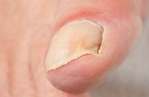 La couverture pour les ongles du microorganisme végétal