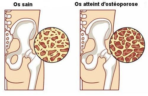 8 aliments pour prévenir l'ostéoporose