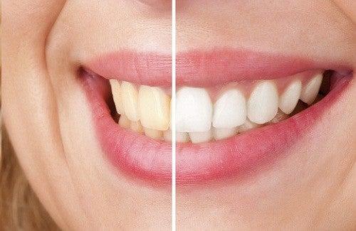 5 astuces naturelles qui font blanchir les dents