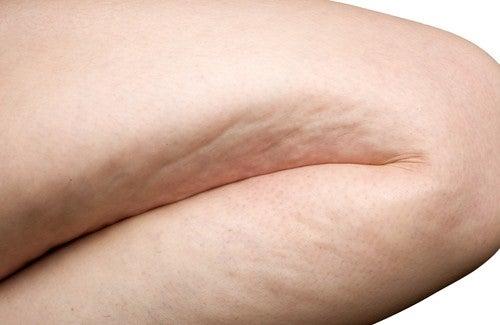 Quelques astuces naturelles pour combattre la cellulite