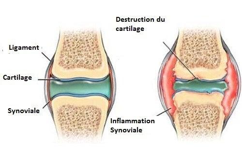 Comment prévenir les douleurs au niveau du cartilage